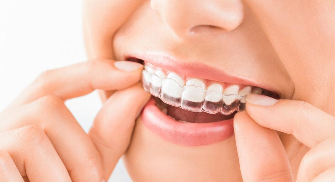 Aligner sind eine nahezu unsichtbare und komfortable Methode zur Korrektur von Zahnfehlstellungen. Foto: istock